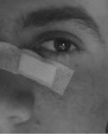 Occhio sinistro - E.G.